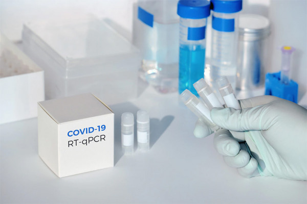 Bilanț coronavirus – 1 mai: 24 de cazuri noi, raportate în județ. 1.307 de infectări, la nivel național