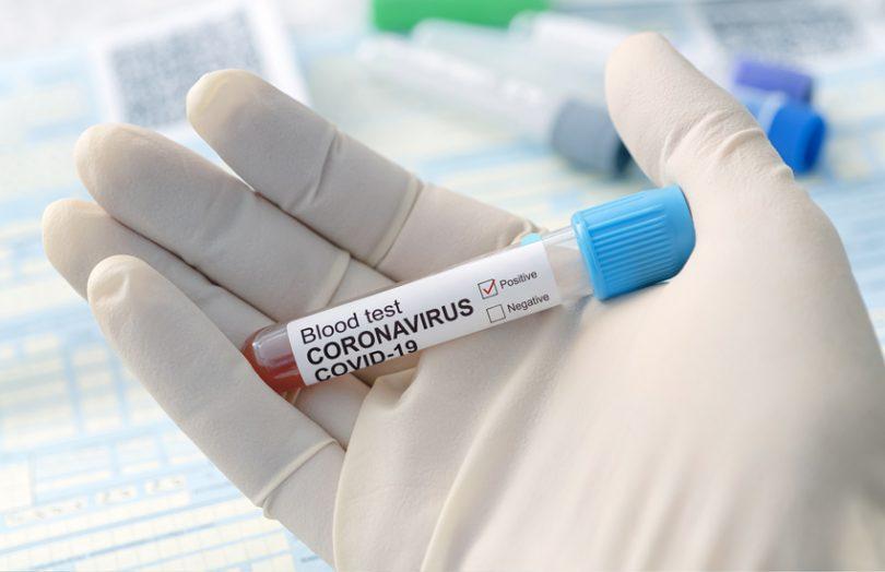 Coronavirus: Încă 17 hunedoreni, confirmați pozitiv. 1.629 de cazuri noi în țară