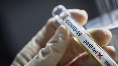 Coronavirus: 220 de cazuri noi, raportate în județul Hunedoara, în ultimele 24 de ore. 8.499 de îmbolnăviri în țară