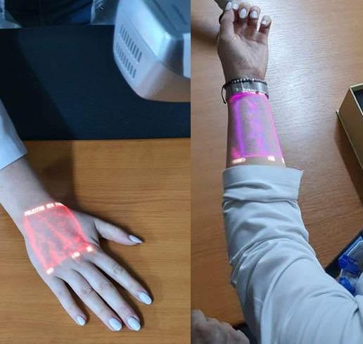 Un dispozitiv medical, ce identifică venele, în special la copii, donat spitalului din Brad